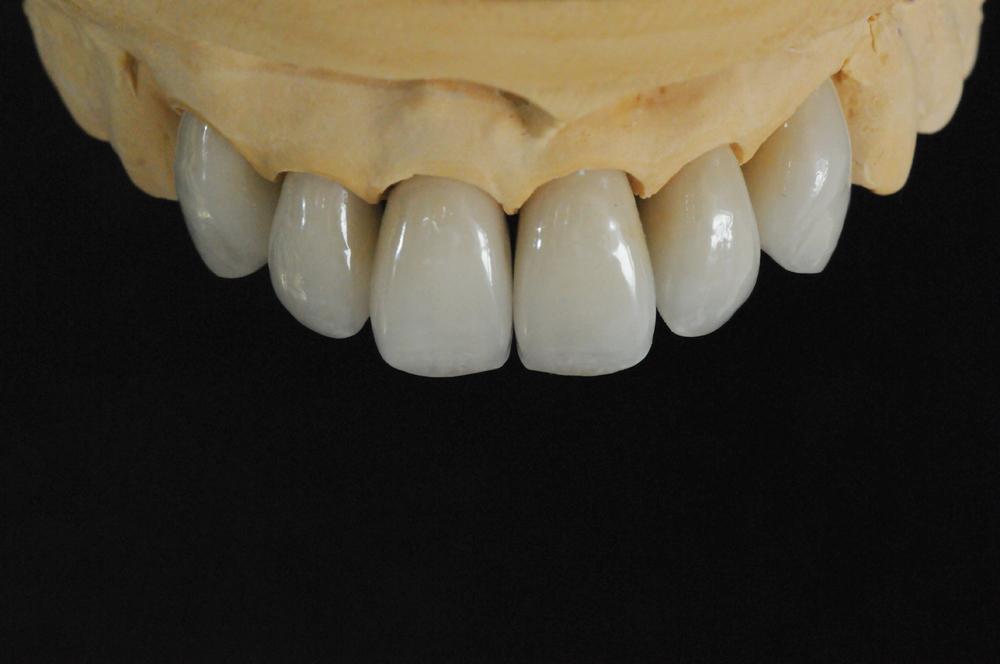 dentures002